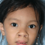 Cleft Lip and Palate – Cleft NZ – Cleft Lip Operation Restore Hope